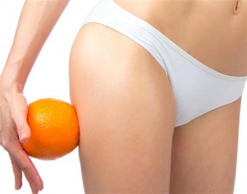 5 kezelés a narancsbőr ellen