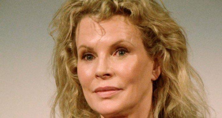 A legnagyobb hollywood-i botoxkatasztrófák