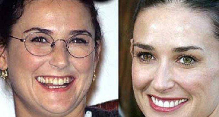 Itt van 17 élő példa arra, hogy mennyit számít a ragyogó mosoly