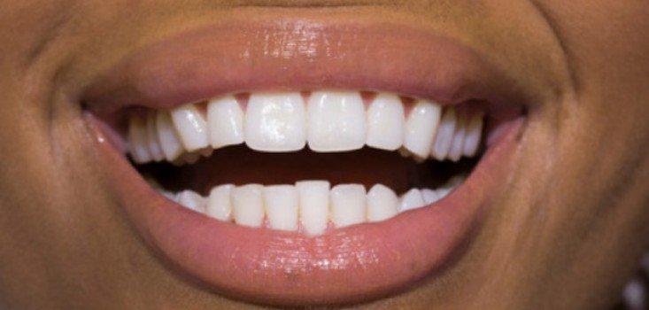 Legyél te is szakértő a szájápolásban!
