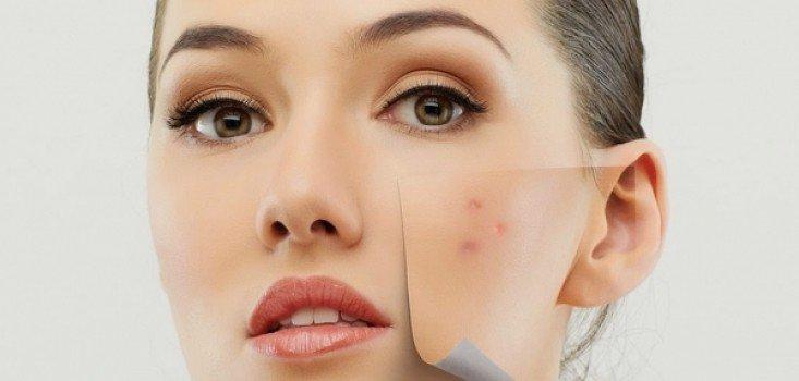 Tartós megoldás a száj körüli pattanások ellen